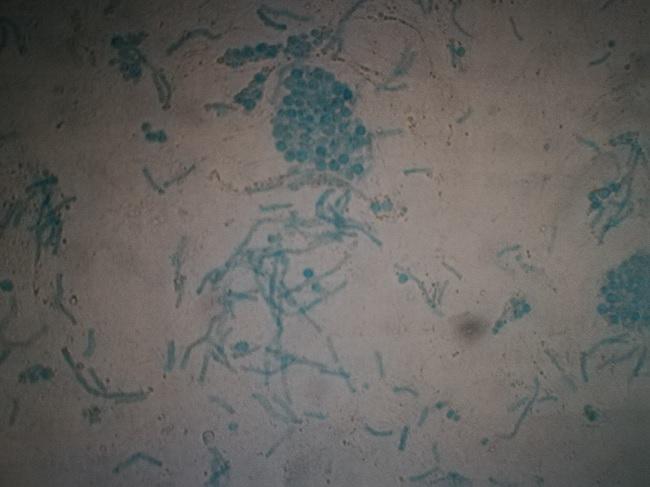 Отрубевидный лишай. Микроскопия на грибы.